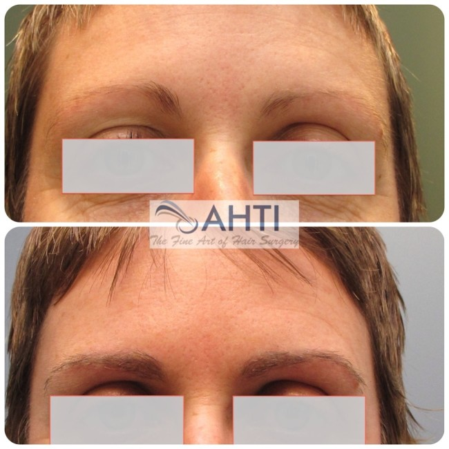 Have your eyebrows grow in shape – no more pencilling, tattooing or plucking