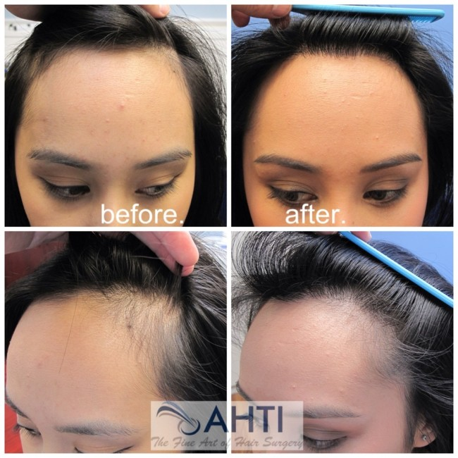 Hair transplant female hairline