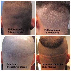 Hair transplant scars