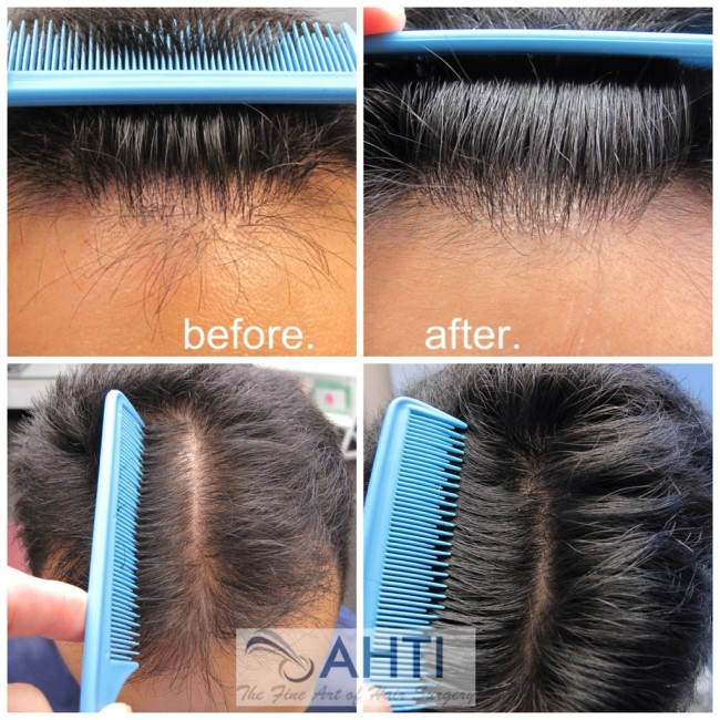Hair transplant and PRP therapy