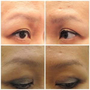 Eyebrow PRP therapy
