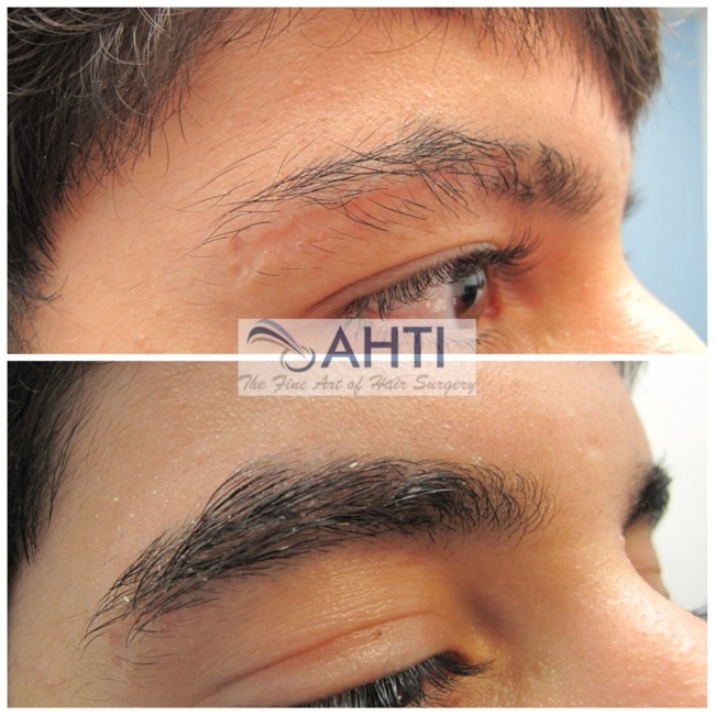 Eyebrow transplant scar repair