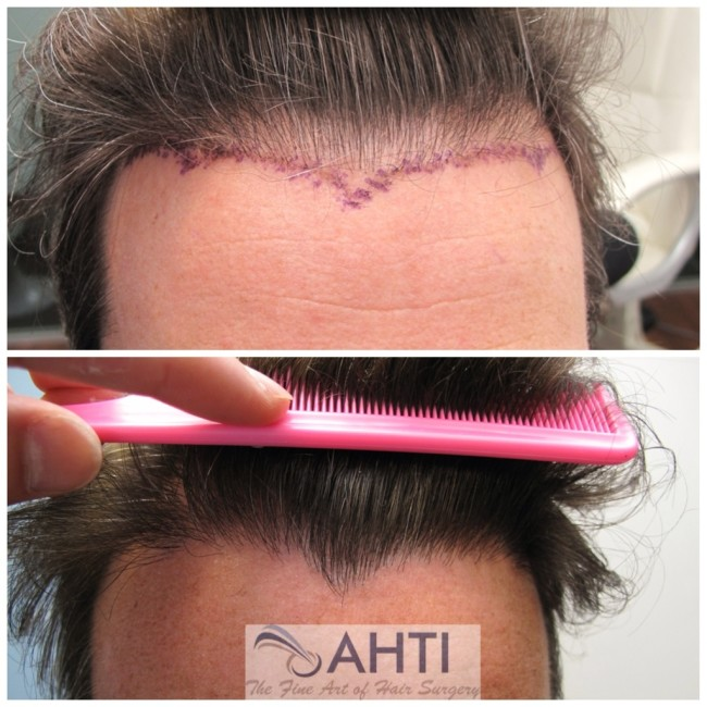 Hair transplant for hairline