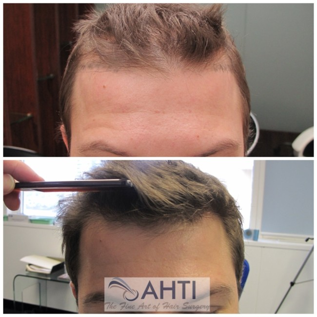 hairline transplant