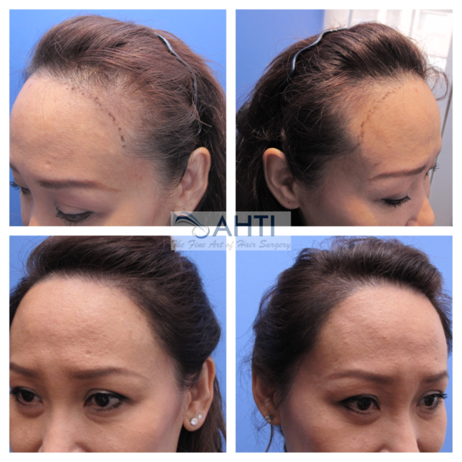 female hairline restoration